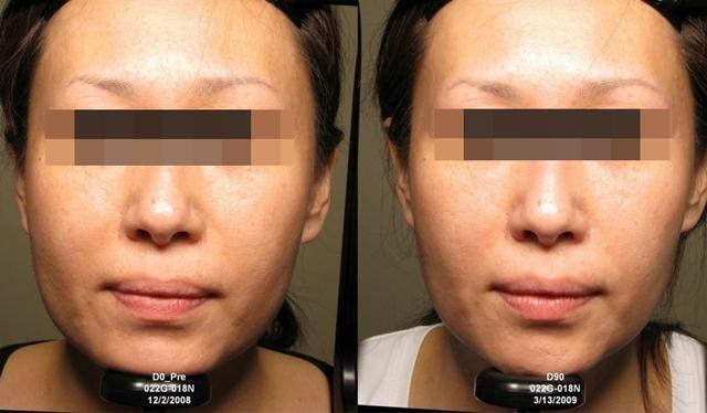 5-3  HIFU Face Lifting   D&PS
