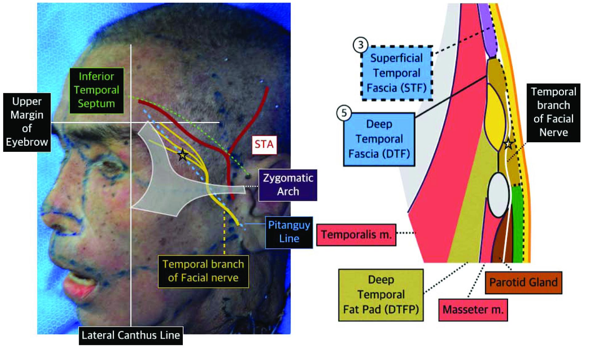 Temporoparietal Fascial Flap
