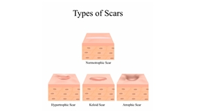Types,Of,Scars.,Acne,Scars.,Keloid,,Hypertrophic,,Atrophic,,Normotrophic.,The