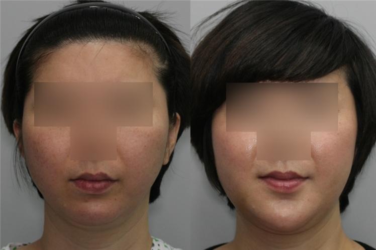 6-4. application in plastic surgery: micrognathia | d&ps, Skeleton