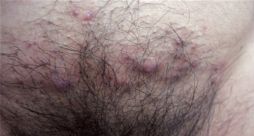 folliculitis pubic area female