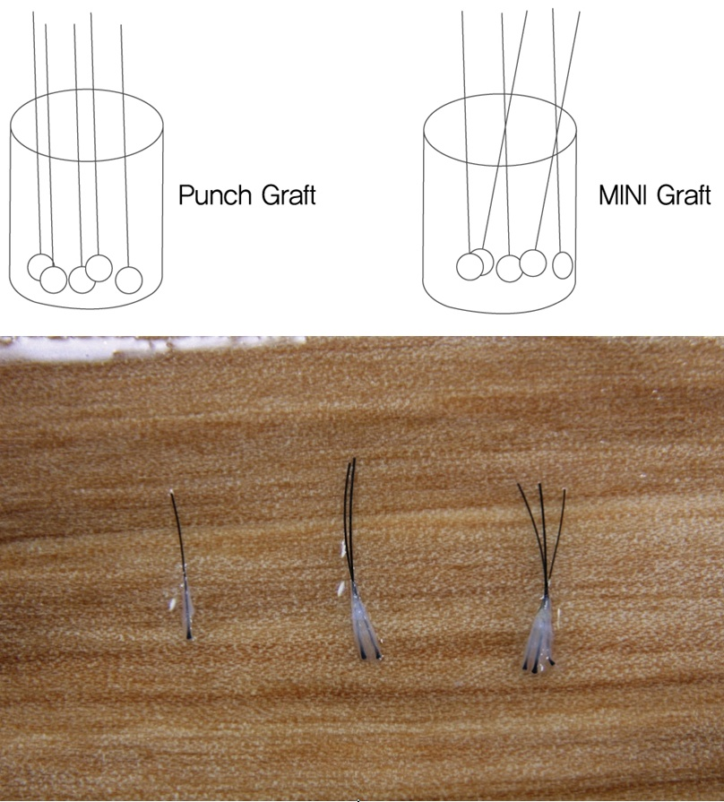 [Figure 6. Punch Graft, MINI Graft, Follicular Unit Graft]