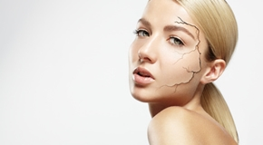 concept of a dry skin