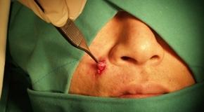 Epidermal Cyst Surgery_t