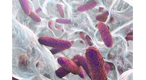 Biofilm containing bacteria Klebsiella