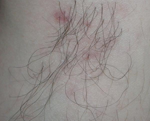 [Figure 2. I transplanted scalp hair onto a calf in 1999. Ten years later, the transplanted hair showed very slow growth rate compared to the scalp hair and the maximum length did not exceed 15cm.]