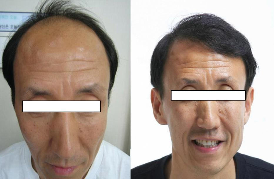 [Figure 7. Before pore unit hair transplantation (left) and one year after (right)]