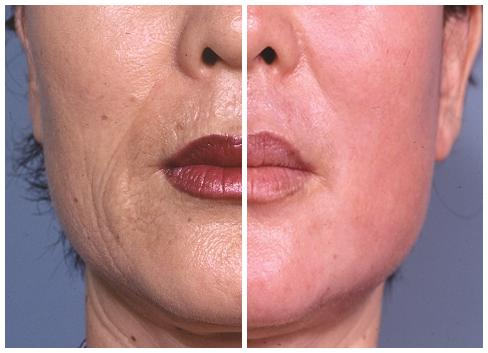 [laser resurfacing before and after (left shows skin before laser resurfacing, right shows skin after laser resurfacing)]