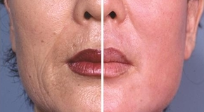 History of Laser Resurfacing_t
