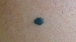 blue nevus