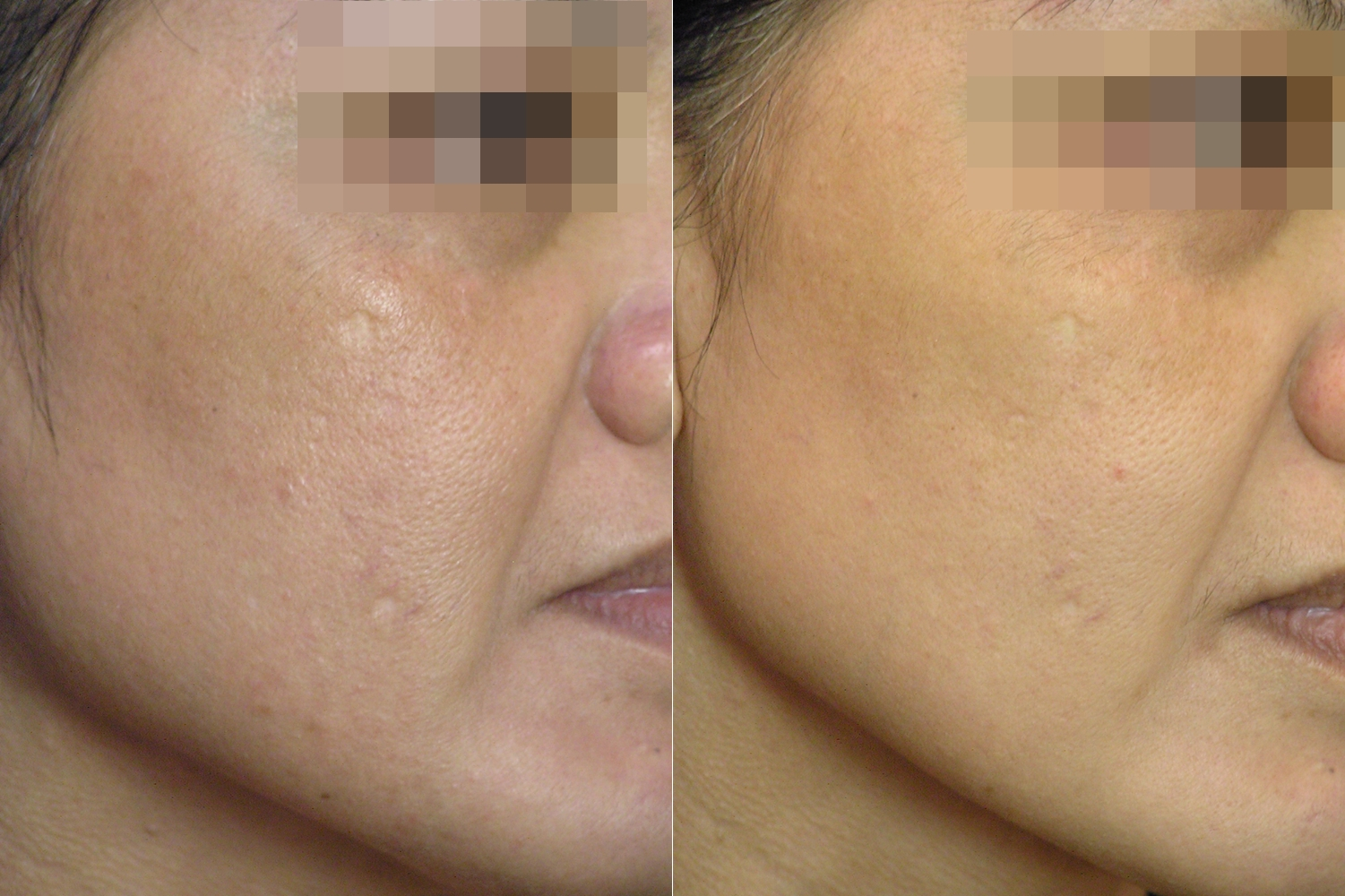Aileen] Treatment of Melasma, Skin Rejuvenation and Tightening Long-pulse Nd:YAG  Laser Ⅱ | D&PS