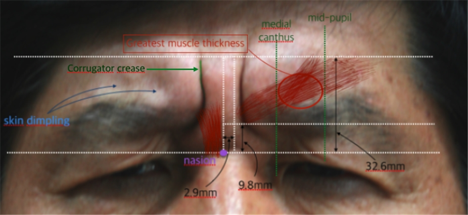 1-2. upper face: forehead & glabella | d&ps, Human Body