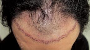 hair290160